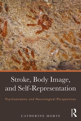 Stroke, Body Image, and Self Representation: Psychoanalytic and Neurological Perspectives book cover