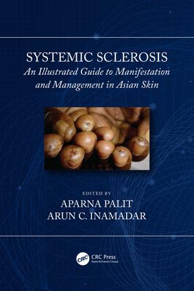 Systemic Sclerosis: An Illustrated Guide to Manifestation and Management in Asian Skin book cover