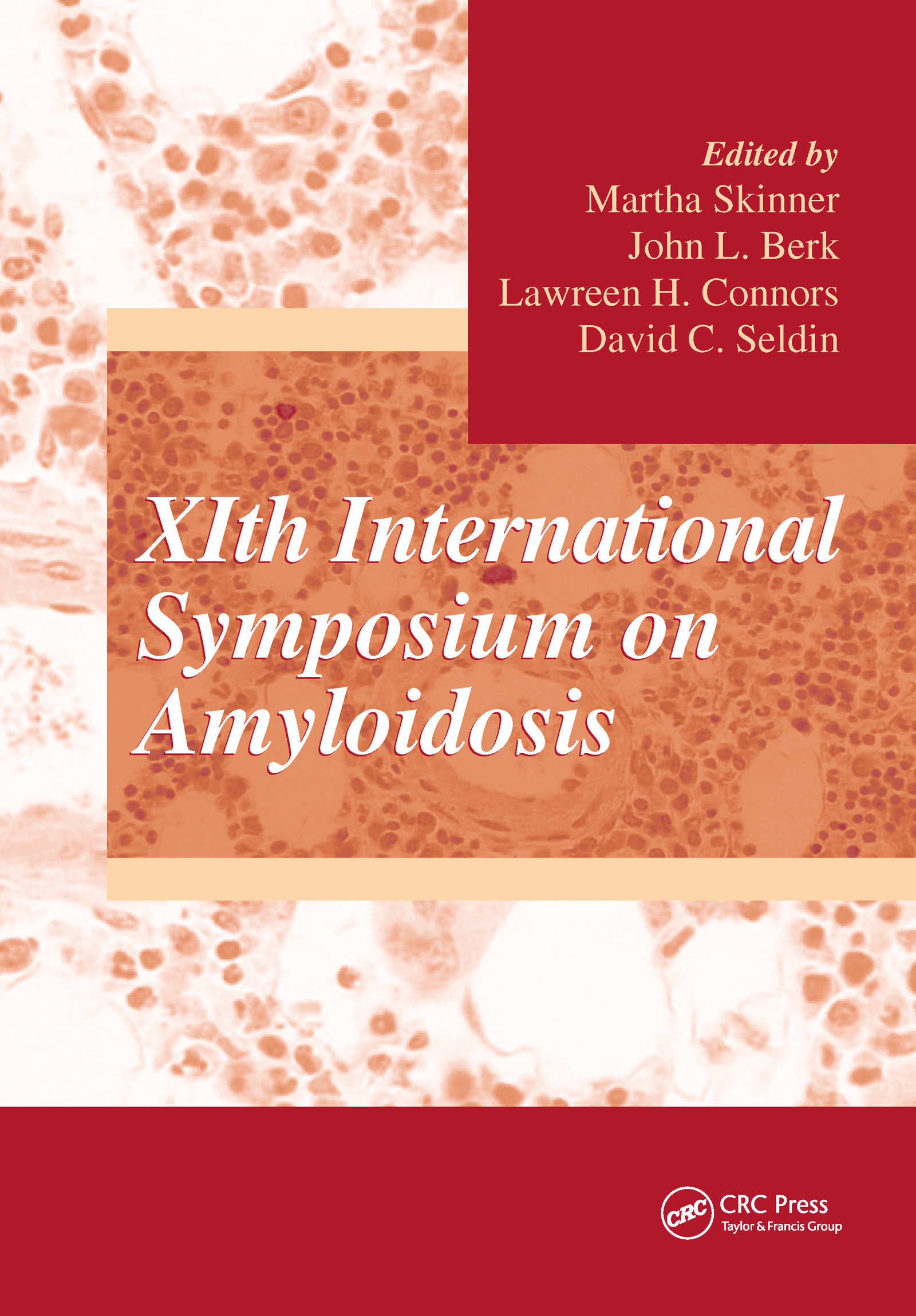 XIth International Symposium on Amyloidosis: 1st Edition (Hardback) book cover