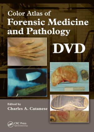 Color Atlas of Forensic Medicine and Pathology, DVD: 1st Edition (DVD) book cover