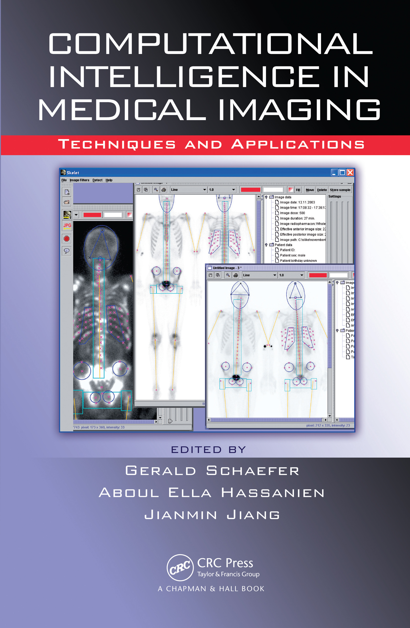 Computational Intelligence in Medical Imaging: Techniques and Applications, 1st Edition (Hardback) book cover