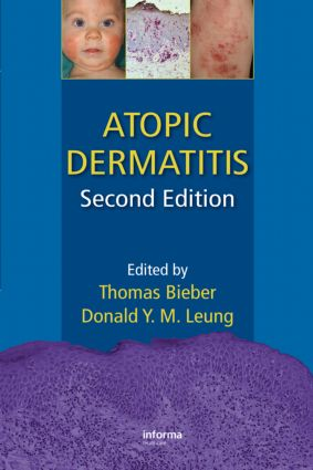 Atopic Dermatitis: 2nd Edition (Hardback) book cover