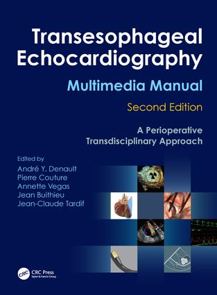 Transesophageal Echocardiography Multimedia Manual: A Perioperative Transdisciplinary Approach, 2nd Edition (Hardback) book cover