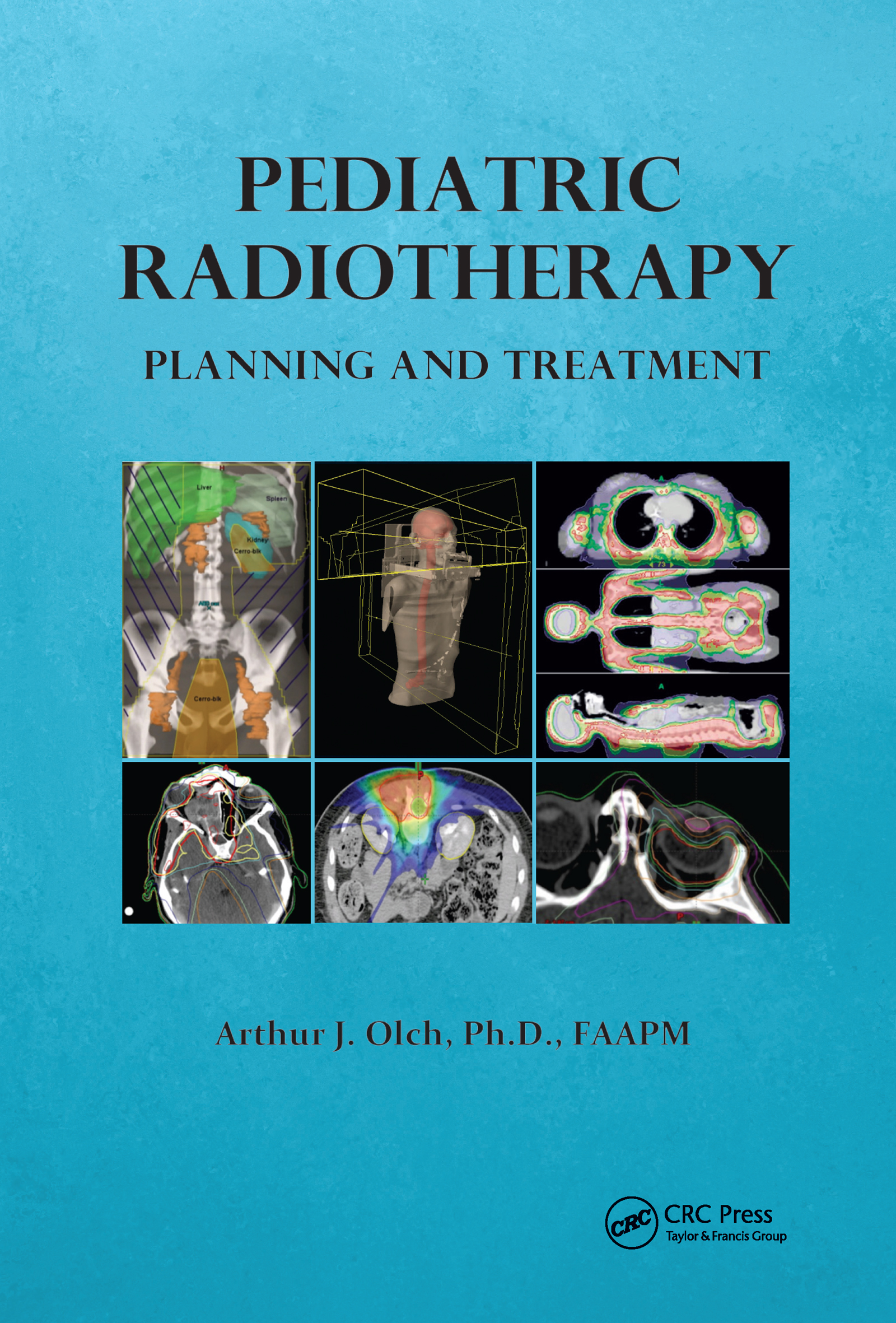 Pediatric Radiotherapy Planning and Treatment (Hardback) book cover