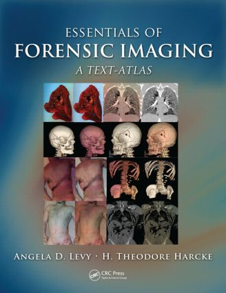 Essentials of Forensic Imaging: A Text-Atlas, 1st Edition (Hardback) book cover