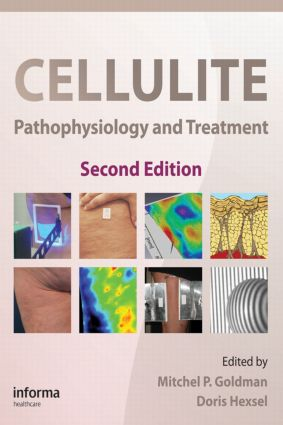 Cellulite: Pathophysiology and Treatment book cover