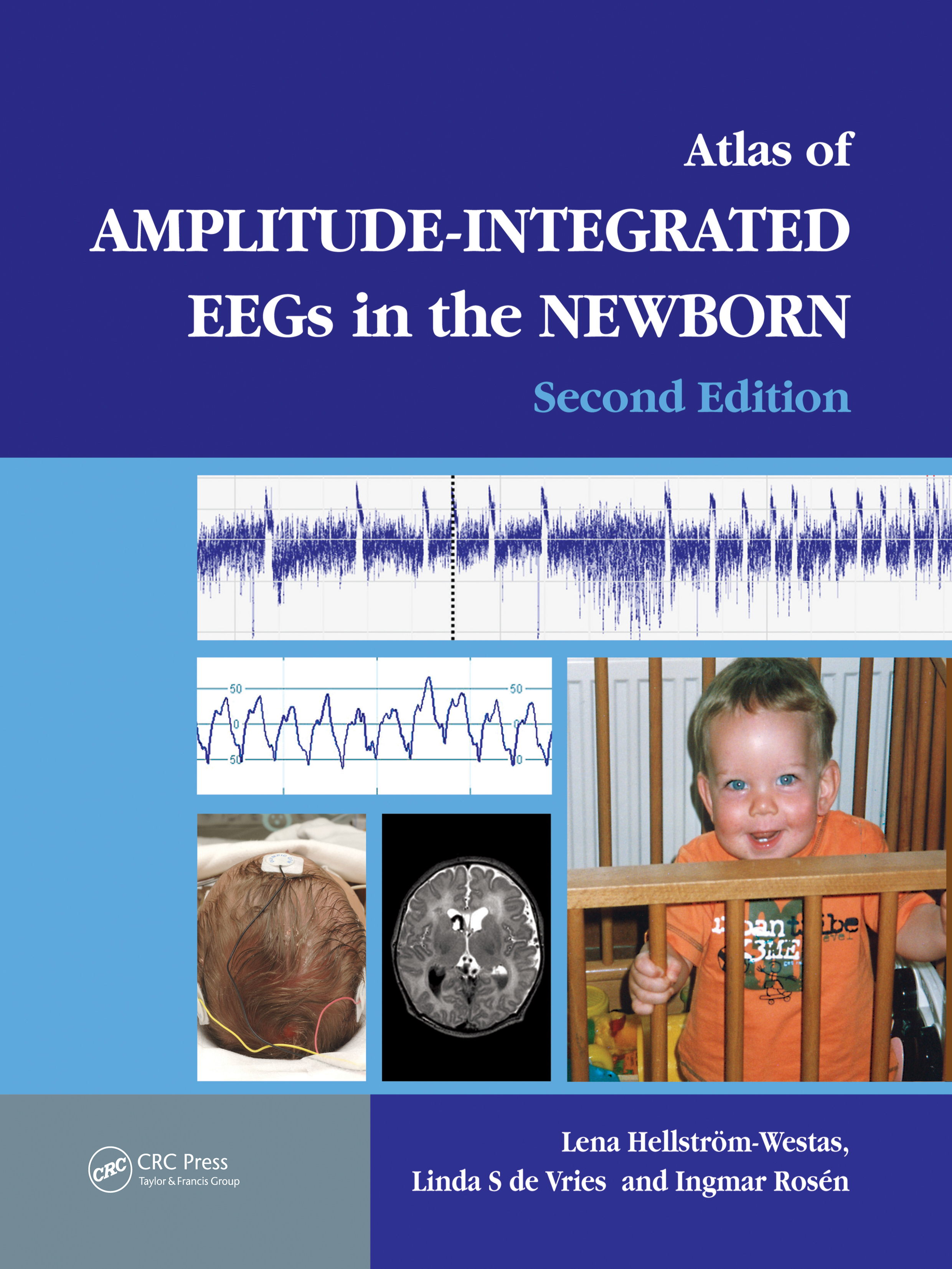 An Atlas of Amplitude-Integrated EEGs in the Newborn