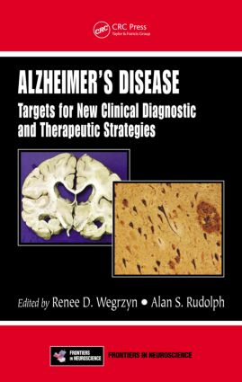 Alzheimer's Disease: Targets for New Clinical Diagnostic and Therapeutic Strategies (Hardback) book cover