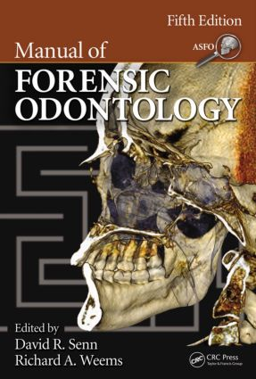 Manual of Forensic Odontology, Fifth Edition: 5th Edition (Hardback) book cover