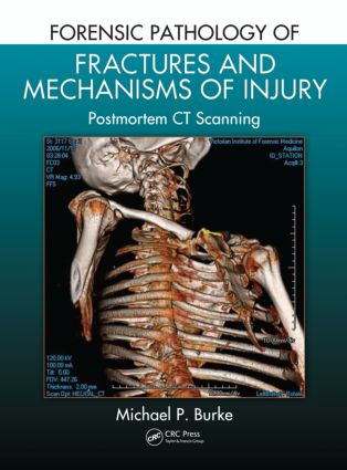 Forensic Pathology of Fractures and Mechanisms of Injury: Postmortem CT Scanning (Hardback) book cover