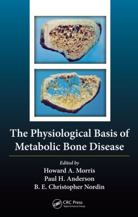 The Physiological Basis of Metabolic Bone Disease (Hardback) book cover