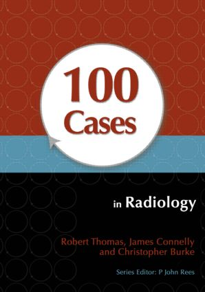 100 Cases in Radiology (Paperback) book cover
