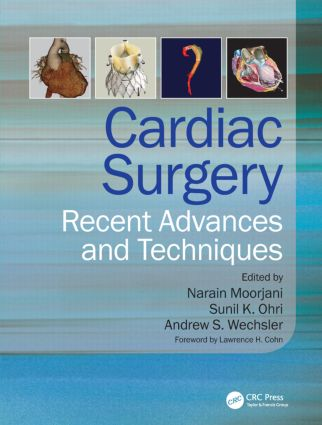 Cardiac Surgery: Recent Advances and Techniques, 1st Edition (Hardback) book cover