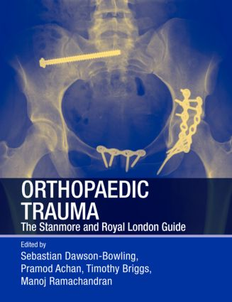 Orthopaedic Trauma: The Stanmore and Royal London Guide, 1st Edition (Paperback) book cover