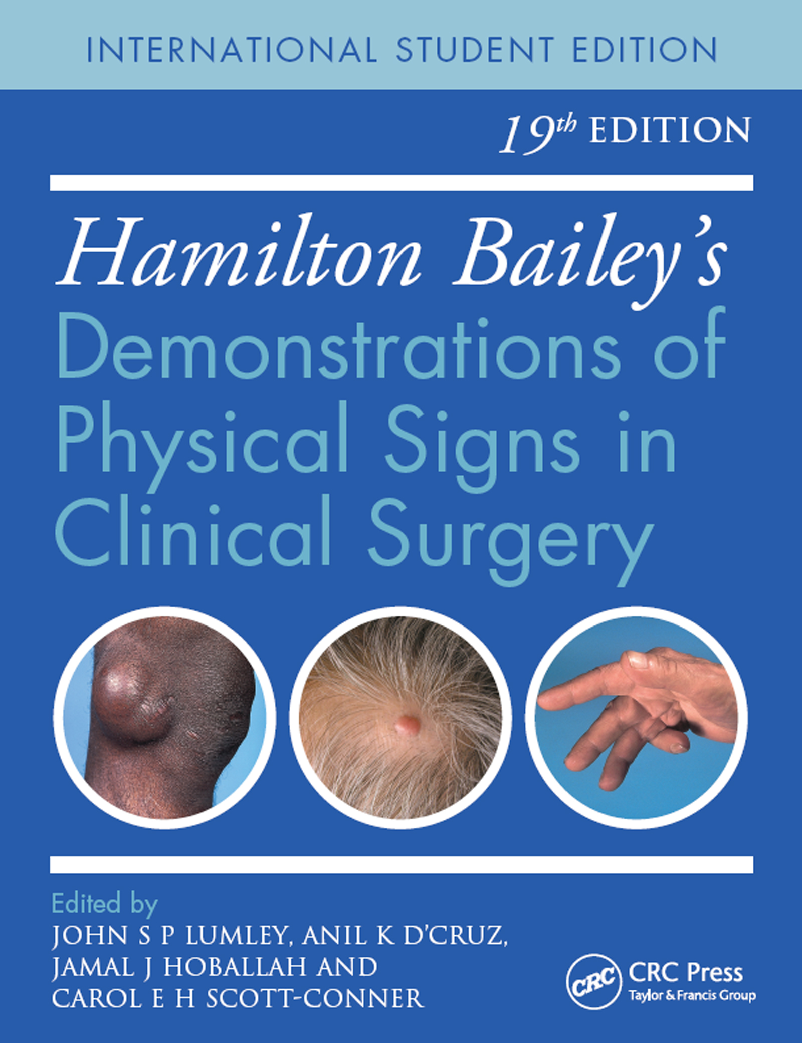 Hamilton Bailey's Physical Signs: Demonstrations of Physical Signs in Clinical Surgery, 19th Edition book cover