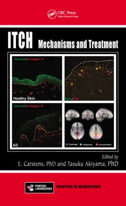 Itch: Mechanisms and Treatment book cover