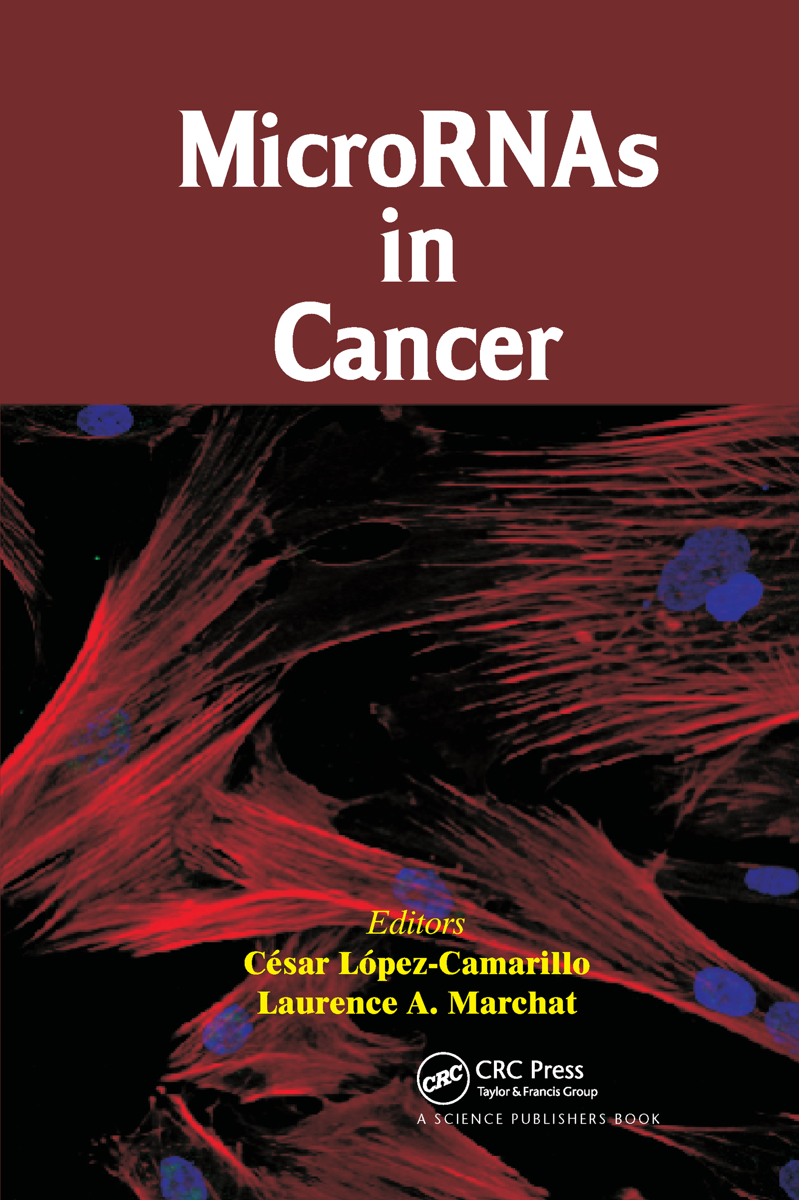 MicroRNAs in Cancer: 1st Edition (Hardback) book cover