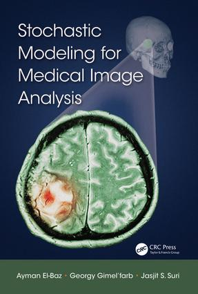 Stochastic Modeling for Medical Image Analysis: 1st Edition (Hardback) book cover