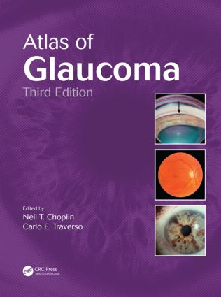 Atlas of Glaucoma: 3rd Edition (Hardback) book cover