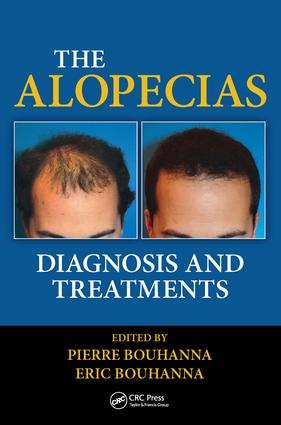 The Alopecias: Diagnosis and Treatments, 1st Edition (Hardback) book cover