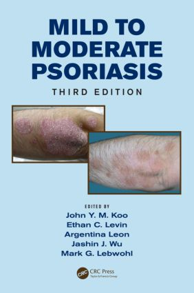 Mild to Moderate Psoriasis: 3rd Edition (Hardback) book cover