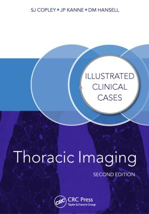 Thoracic Imaging: Illustrated Clinical Cases, Second Edition book cover