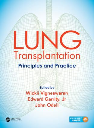 Lung Transplantation: Principles and Practice, 1st Edition (Pack - Book and Ebook) book cover