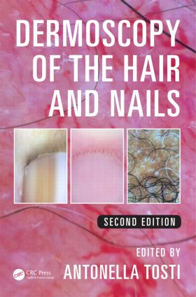 Dermoscopy of the Hair and Nails: 2nd Edition (Hardback) book cover