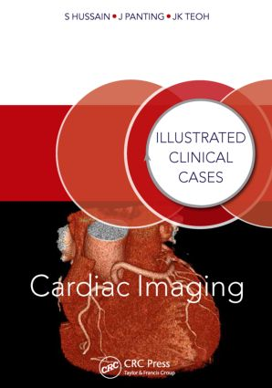 Cardiac Imaging: Illustrated Clinical Cases book cover