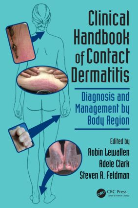 Clinical Handbook of Contact Dermatitis: Diagnosis and Management by Body Region, 1st Edition (Paperback) book cover