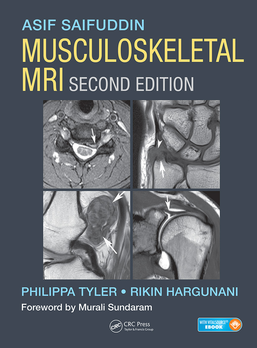 Musculoskeletal MRI: 2nd Edition (Pack - Book and Ebook) book cover