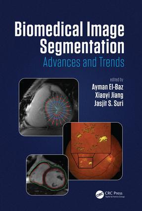 Biomedical Image Segmentation: Advances and Trends, 1st Edition (Hardback) book cover