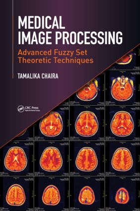 Medical Image Processing: Advanced Fuzzy Set Theoretic Techniques, 1st Edition (Hardback) book cover