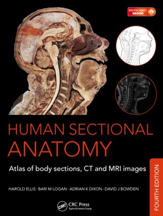 Human Sectional Anatomy: Atlas of Body Sections, CT and MRI Images, Fourth Edition, 4th Edition (Pack - Book and Ebook) book cover