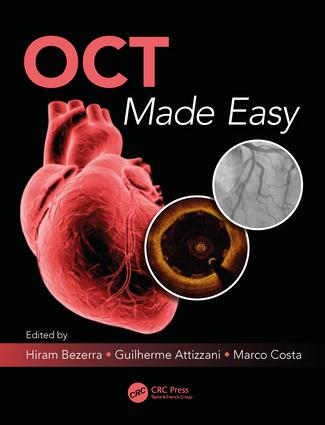 OCT Made Easy: 1st Edition (Paperback) book cover