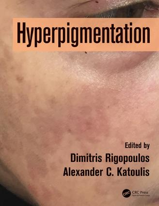 Hyperpigmentation: 1st Edition (Hardback) book cover
