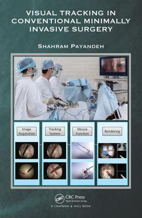 Visual Tracking in Conventional Minimally Invasive Surgery: 1st Edition (Hardback) book cover