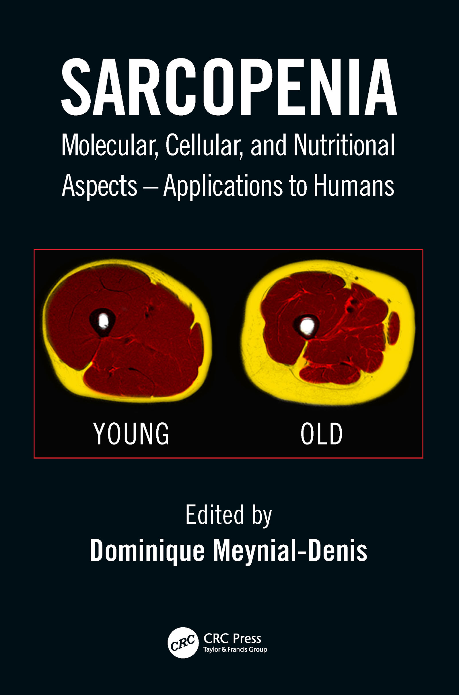 Sarcopenia: Molecular, Cellular, and Nutritional Aspects – Applications to Humans, 1st Edition (Hardback) book cover