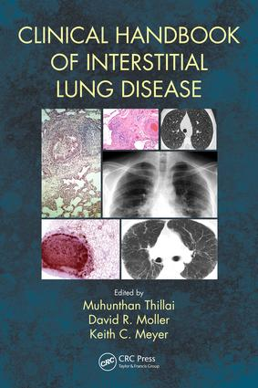 Clinical Handbook of Interstitial Lung Disease: 1st Edition (Paperback) book cover
