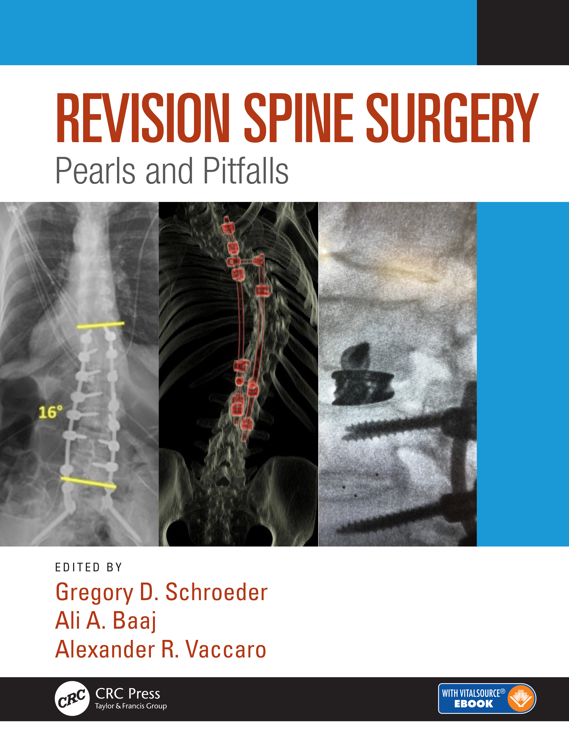 Revision Spine Surgery: Pearls and Pitfalls, 1st Edition (Hardback) book cover