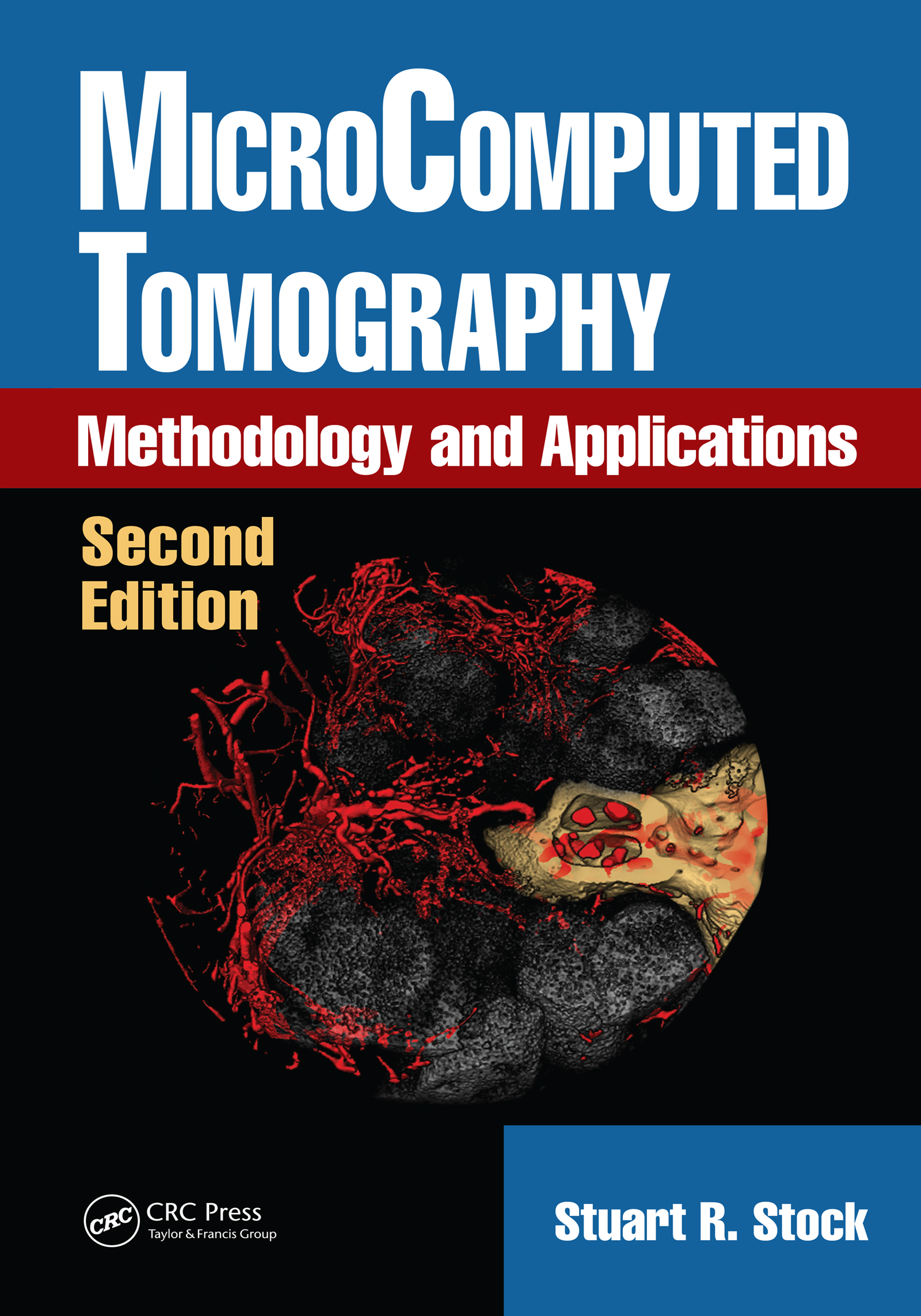 MicroComputed Tomography: Methodology and Applications, Second Edition book cover