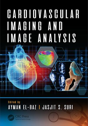 Cardiovascular Imaging and Image Analysis: 1st Edition (Hardback) book cover