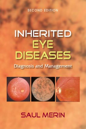Inherited Eye Diseases: Diagnosis and Management, 2nd Edition (Hardback) book cover