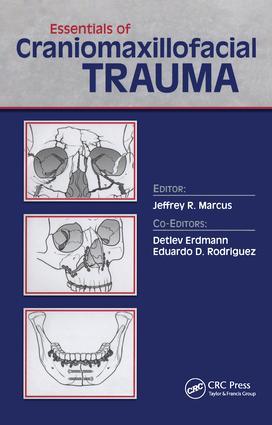 Essentials of Craniomaxillofacial Trauma