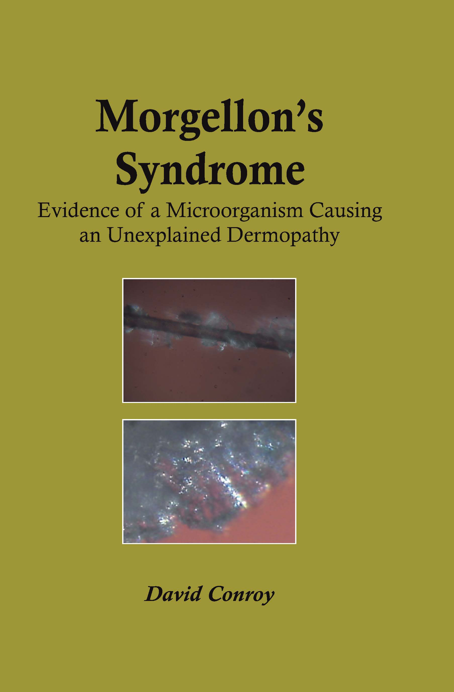 Morgellon's Syndrome: 1st Edition (Paperback) book cover