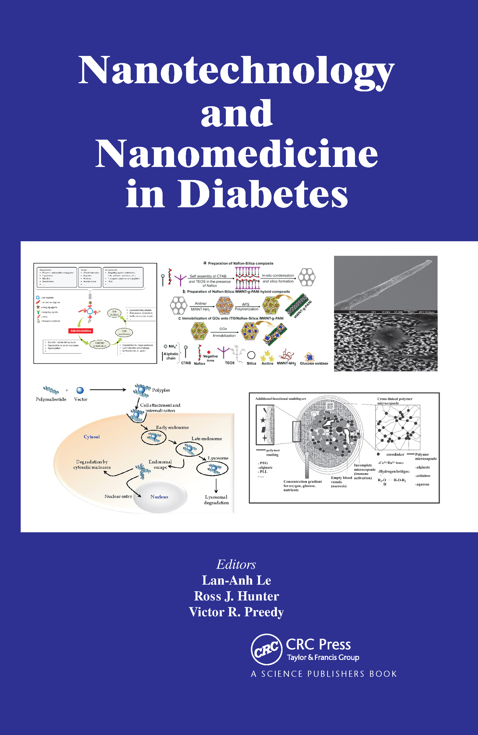 Nanotechnology and Nanomedicine in Diabetes: 1st Edition (Hardback) book cover