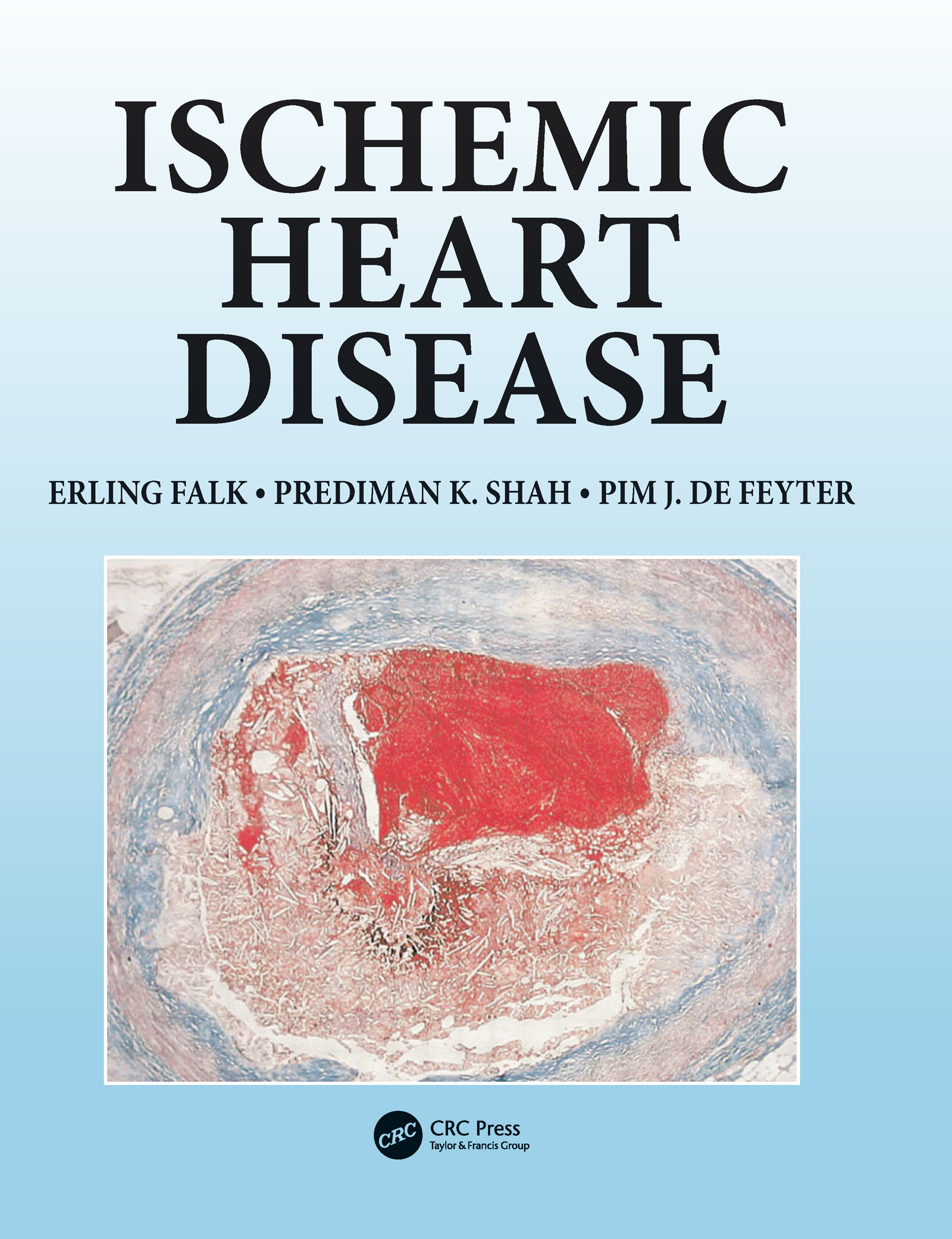 Ischemic Heart Disease: 1st Edition (Hardback) book cover