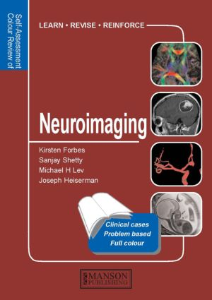 Neuroimaging: Self-Assessment Colour Review, 1st Edition (Paperback) book cover