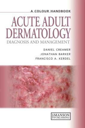Acute Adult Dermatology: Diagnosis and Management: A Colour Handbook book cover
