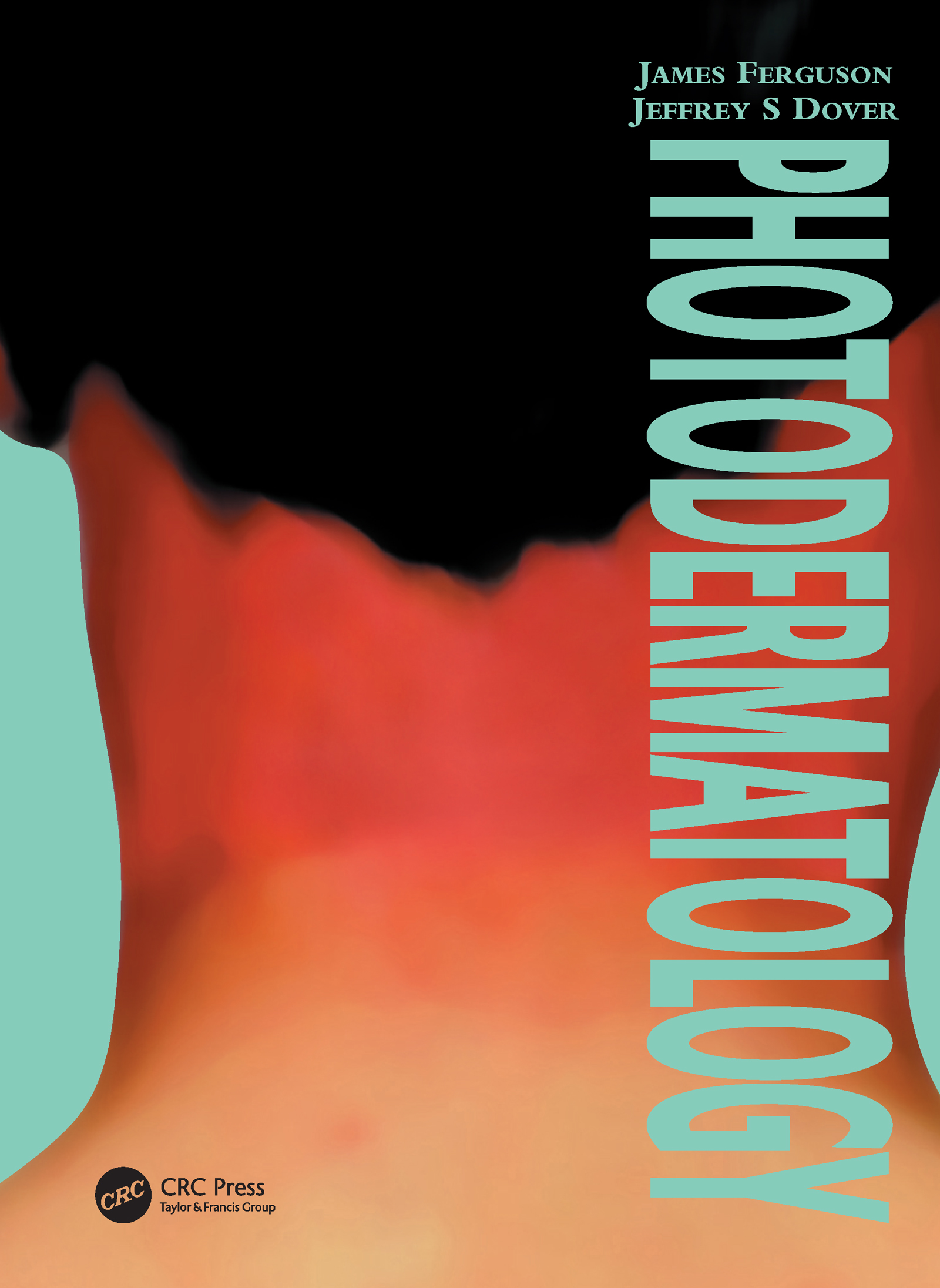 Photodermatology: 1st Edition (Paperback) book cover